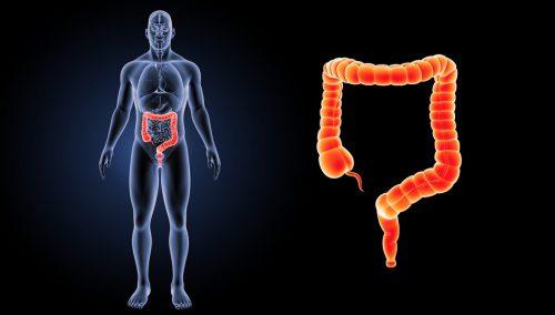 Tout savoir sur la rectite, ou l'inflammation de la muqueuse du rectum