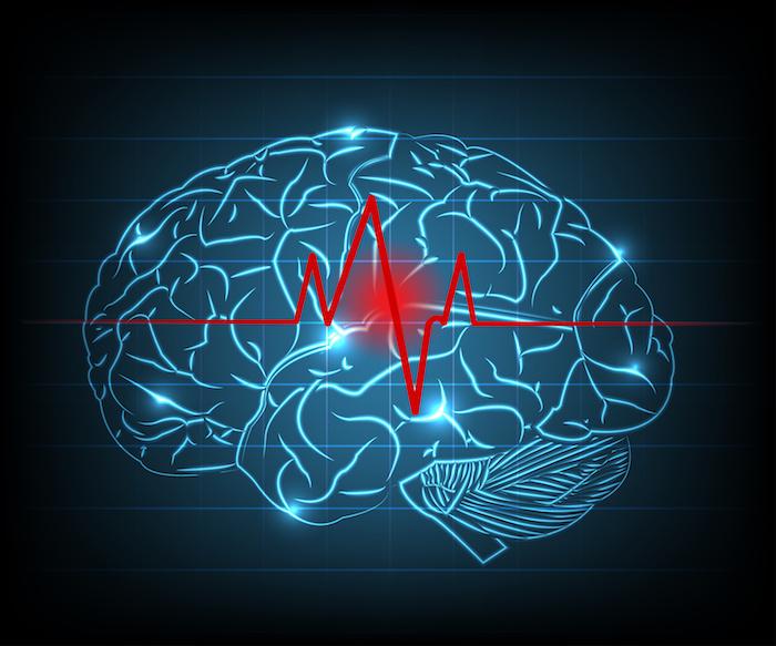 Tout savoir sur l'accident vasculaire cérébral