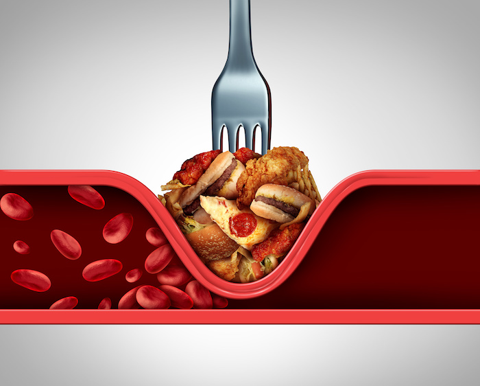On vous dit tout sur le cholestérol