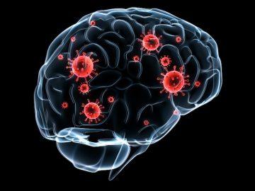 Des bactéries dans le cerveau