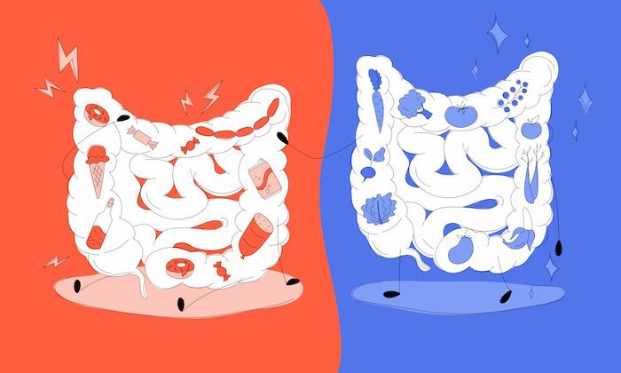 Graisses, microbiote intestinal et maladies cardiaques : un triangle dangereux